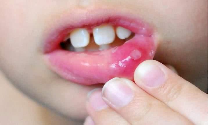 аллергия на цитрусовые симптомы фото