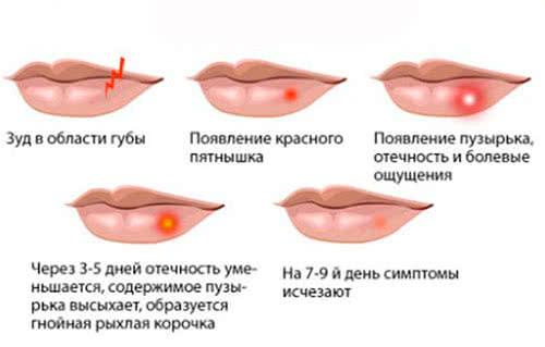 Быстрое лечение герпеса на губе в домашних условиях