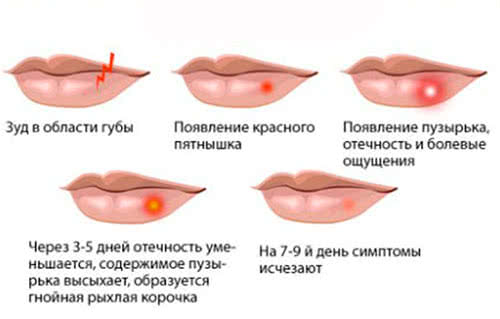 Герпес губы кто не болеет