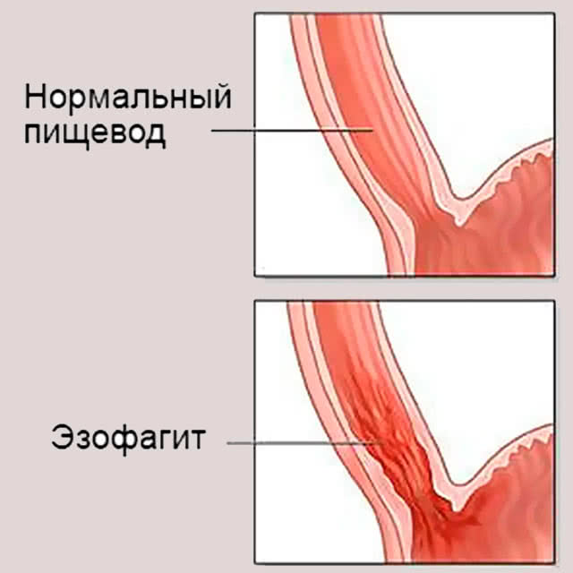 Эзофагит