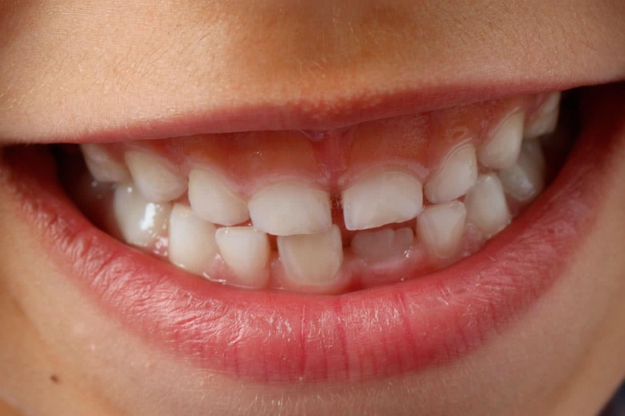Как убрать щель между передними зубами