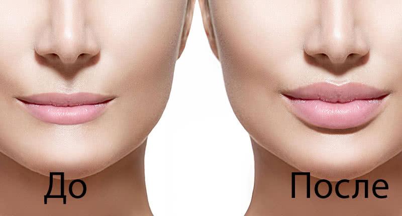 Увеличение губ рестилайном